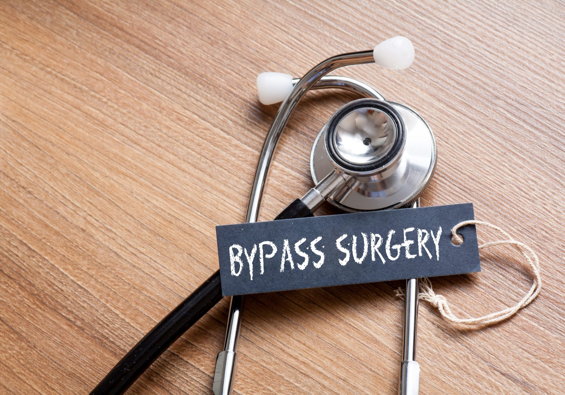 Everything you need to Know about Bypass Surgery- Lourdes Hospital